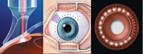 Mr Raj Glaucoma Laser Mr Raj Mr Raj Glaucoma Mr Raj