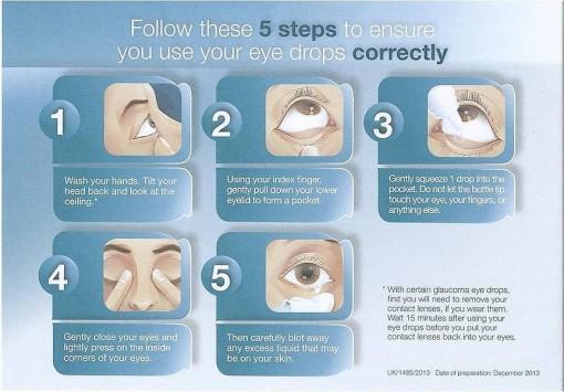 Complex Glaucoma Surgery Mr Akash Raj Private Glaucoma Treatment
